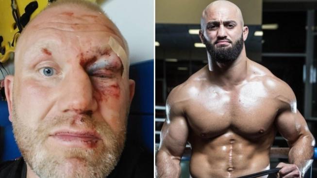 MMA zápasník Sergej Kharitonov po útoku boxerem od Adama Yandieva utrpěl nepříjemné zlomeniny v obličeji