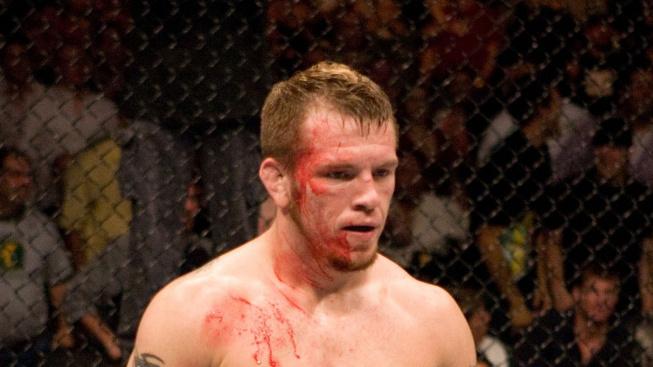 Temná strana MMA: Bývalý bojovník UFC Fisher trpí díky zranění mozku výpadky paměti a depresemi