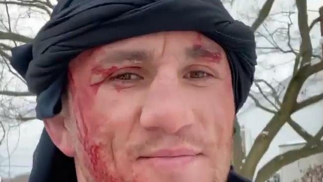 Gruzínský bojovník z UFC podcenil soupeře v podobě zamrzlého rybníku a pořezal si obličej