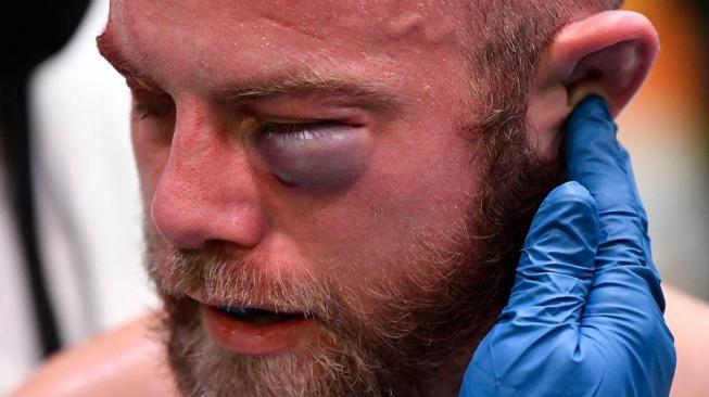 """Devonte Smith """"daroval"""" svému soupeři brutální monokl a zápas tak musel ukončit lékař"""